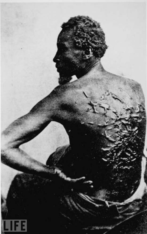 Former slave showing whipping scars