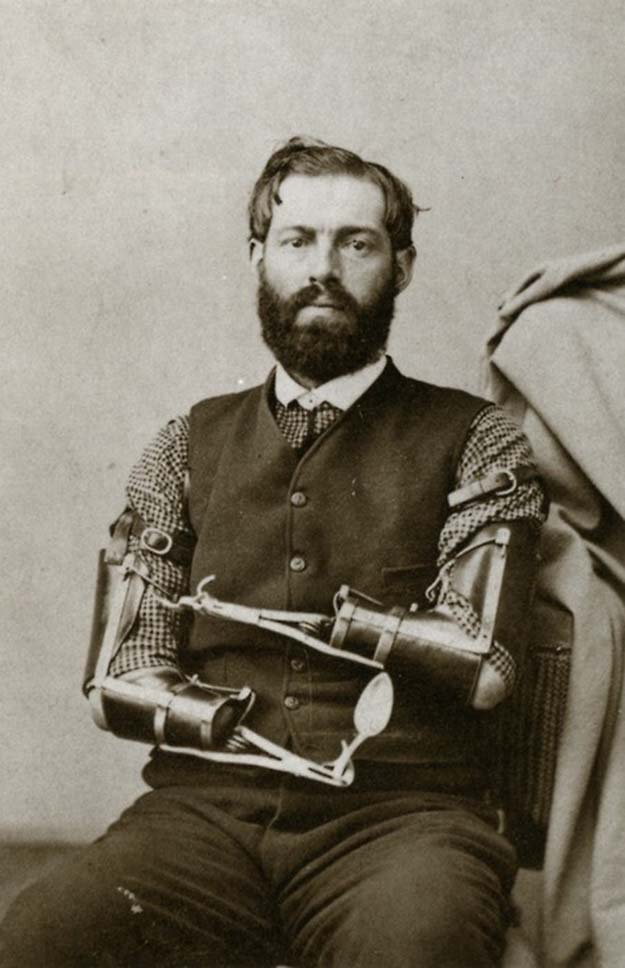 Civil War veteran Samuel Decker built his own prosthetics after losing his arms in combat. Date unknown